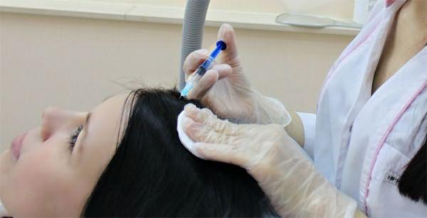 Мезотерапия для избавления от перхоти