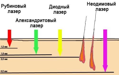 Глубина проникновения в зависимости от вида лазера