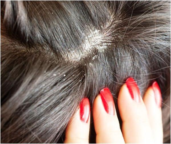 Хотите красивые и здоровые волосы? Боритесь с перхотью!