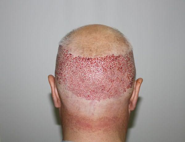 Процесс пересадки волос очень болезненный