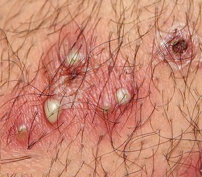 Если не удалить вросший волосок, то процесс воспаления продолжится и на коже появится целая плеяда гнойничков, как на фото.