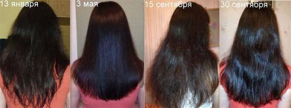 Рост волос от димексида