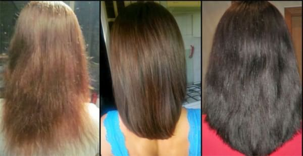 Волосы до и после использования димексида
