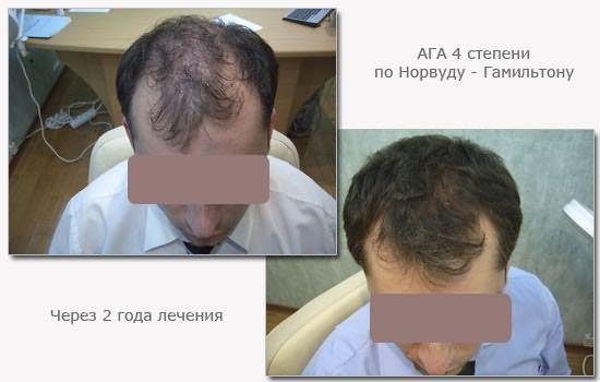 Результаты лечения алопеции 4 степени