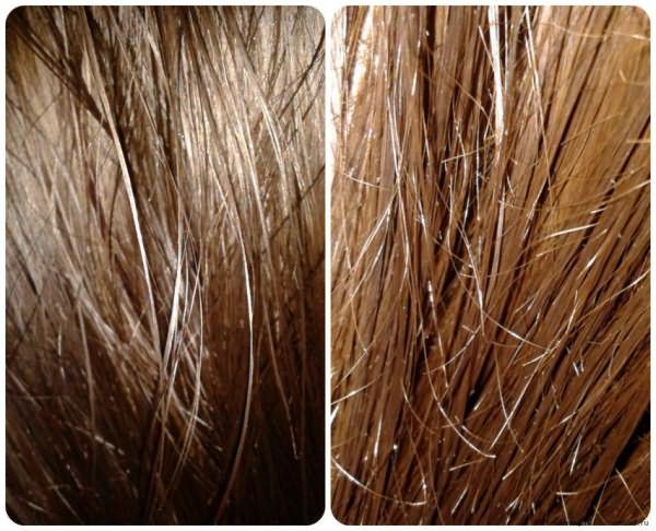 волосы в масле