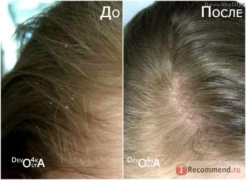 До и после использования шампуня NS против перхоти
