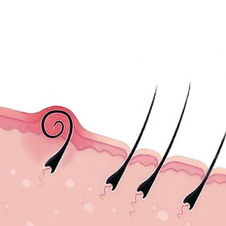 Как растет вросший волосок