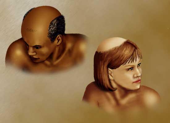 Алопеция может настигнуть как мужчин, так и женщин любого возраста.