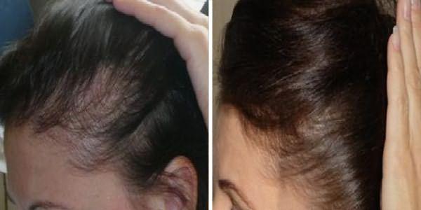 Волосы до и после пользования дарсонвалем