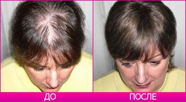 Тоник от выпадения волос: до и после применения