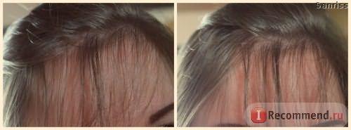 Масло репейное для волос Эвалар фото
