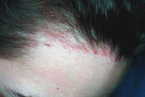 Зуд и красные пятна (на фото) – первые признаки