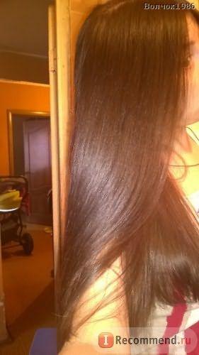 Мезотерапия волос и головы фото