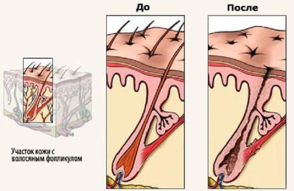 Лазерная эпиляция: воздействие на волосяной фолликул