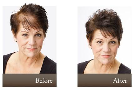 Эффект до и после использования перцовки.