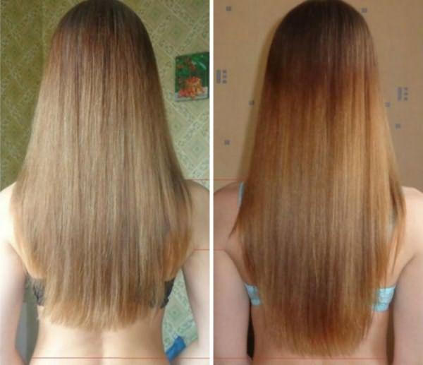 Результат применения масок для роста волос