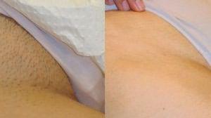 Зона бикини – слева «до», справа «после»