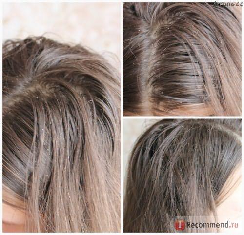 Шампунь от перхоти Head&Shoulders «Уход за чувствительной кожей головы» фото