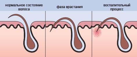 На рисунке показан один из вариантов воспалительного процесса при врастании волоска, когда он загибается вниз и прорастает через слой эпидермиса внутрь.