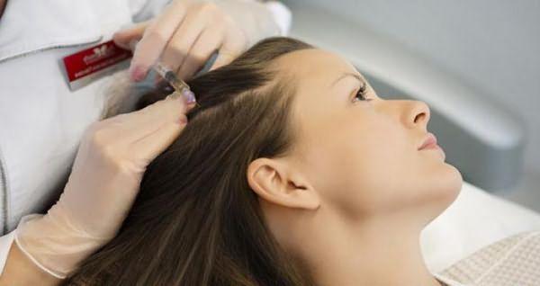 Мезотерапия для волос. Какой препарат выбрать?