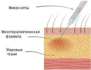 На рисунке показан процесс введения при помощи микроиглы лекарственного вещества в серединный слой кожи.