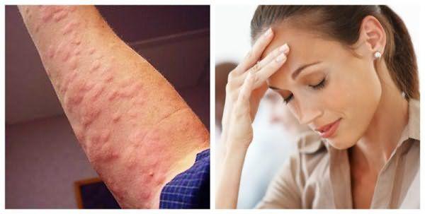Крапивница и головная боль – частые побочные эффекты