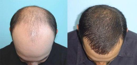 Трансплантация волос – самый эффективный способ