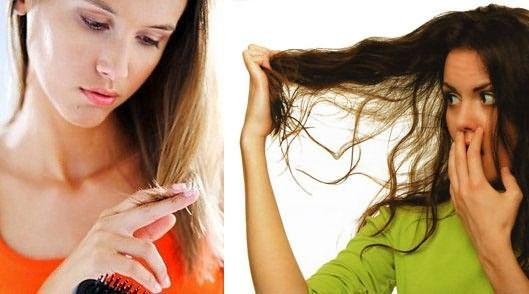 Выпадение волос – это частая причина обращения к трихологу