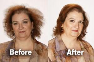 До и после биоламинирования.