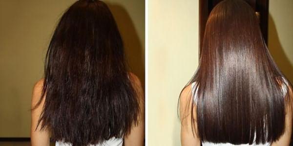 Девушка до и после процедуры