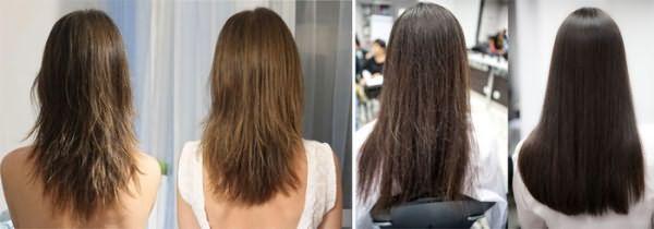 Волосы до и после лечения