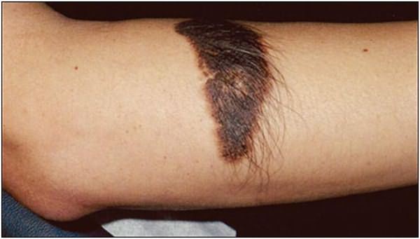 Большое количество капилляров приводит к активному росту волос, как на этом фото