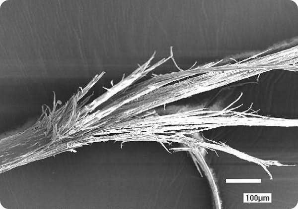 Расслоившийся волос: фото под микроскопом