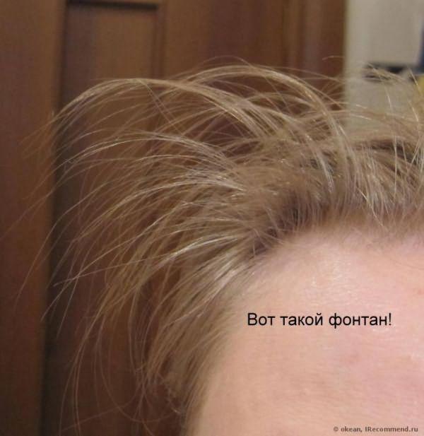 БАД ИННЕОВ Густота волос фото