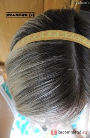 рост волос за 3 мес. с никотиновой кислотой