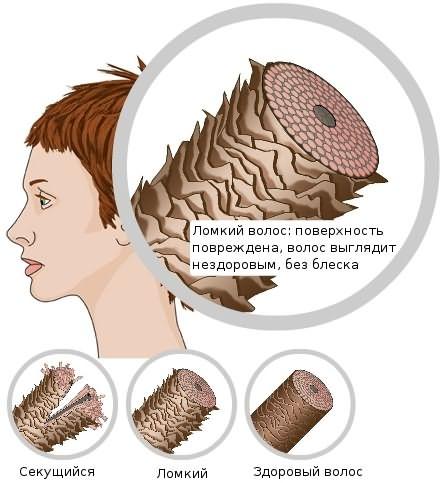 Срезы проблемных волосинок и здорового волоса.