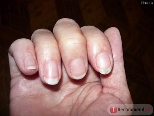 Средство от выпадения волос Атлас-1 «Эсвицин» фото