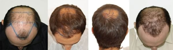 С донорской зоны волосы пересаживают на лысеющие участки