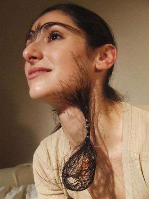 повышенная волосатость у девушек