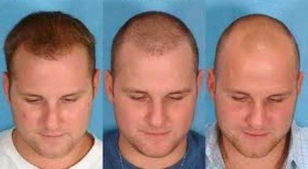 Как прекратить выпадение волос