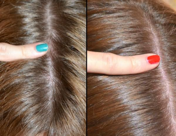 Улучшение состояния волос после приема Доппельгерц: до и после