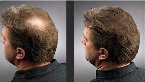 Результат действия спрея: до и после