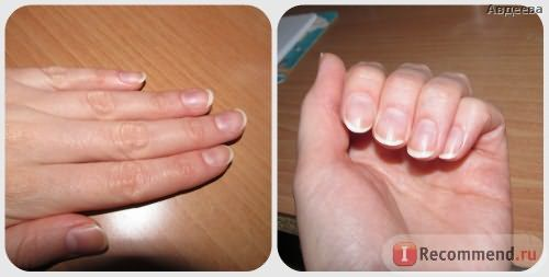 Ногти без белых пятен