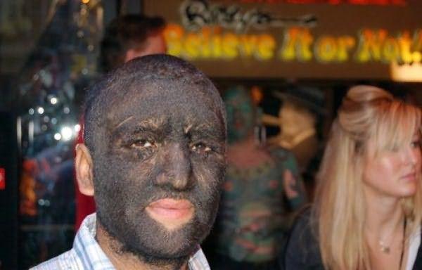 Волосы под глазами у мужчин – редкое явление, однако в Мексике проживает семья, чья волосатость передается уже пятому поколению (на фото Виктор Рамос Гомес)