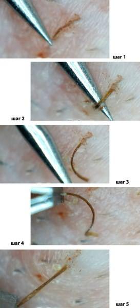 Фото пошагового процесса удаления вросшего волоска.