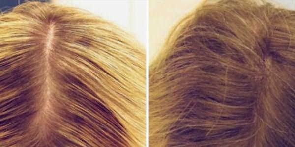 Результат лечения волос дарсонвалем