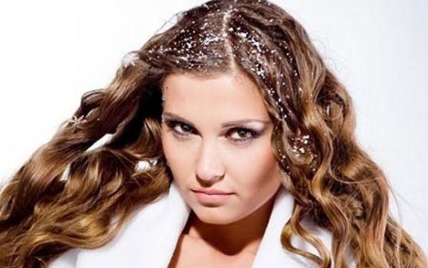 Фото: перхоть – не только малопривлекательна, но и вредит здоровью волос