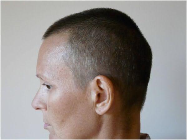 Если есть возможность и средства, лучше сразу попробовать пересадку волос по методу HFE