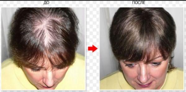 Лечение алопеции: до и после