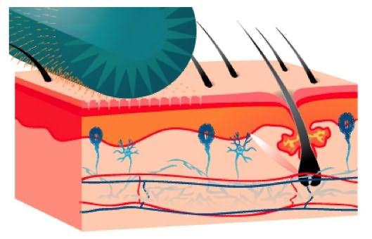 Микроканалы, которые образуются после прокалывания кожи головы иголочками, дают мощный толчок к началу регенерации.